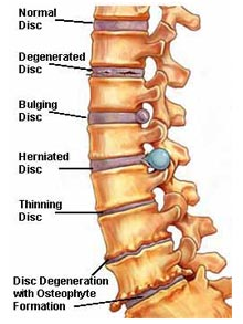 boulder herniated disc experts at dr. craig reese d.c., p.c., Skeleton